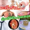 5 มะเร็งร้าย รักษาได้ด้วยใบมะละกอ มะเร็งปอด มะเร็งเต้านม มะเร็งตับ สร้างเซลล์เม็ดเลือดขาว
